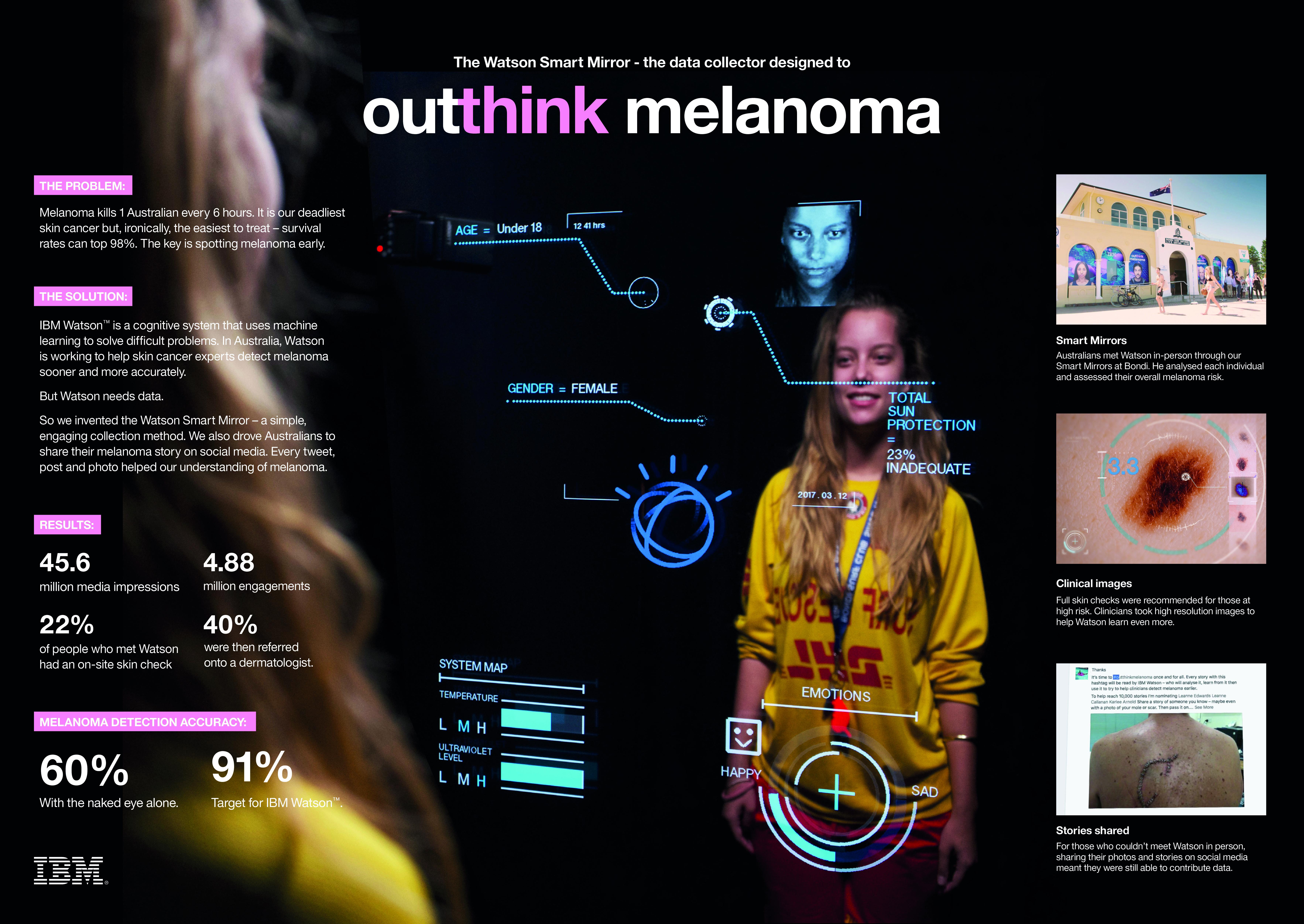 outthink melanoma Thumbnail